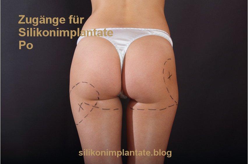 Zugänge für Silikonimplantate Po