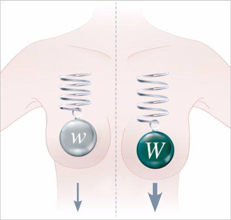 Brustgewebe - B-Lite Implantaten